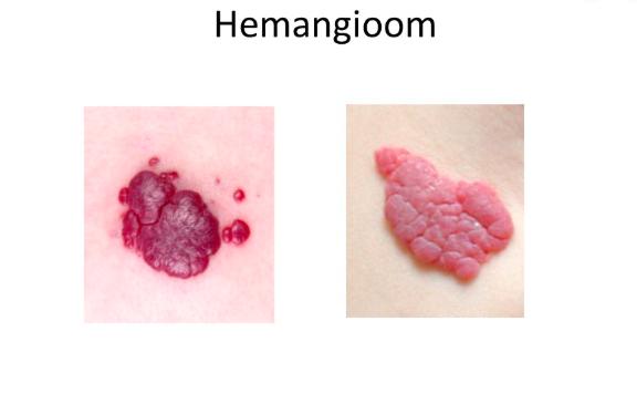 aardbeienvlek-hemangioom-famme.nl